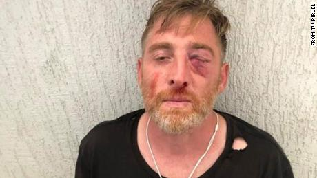TV Pirveli released this image of Lashkarava's injuries before his death.